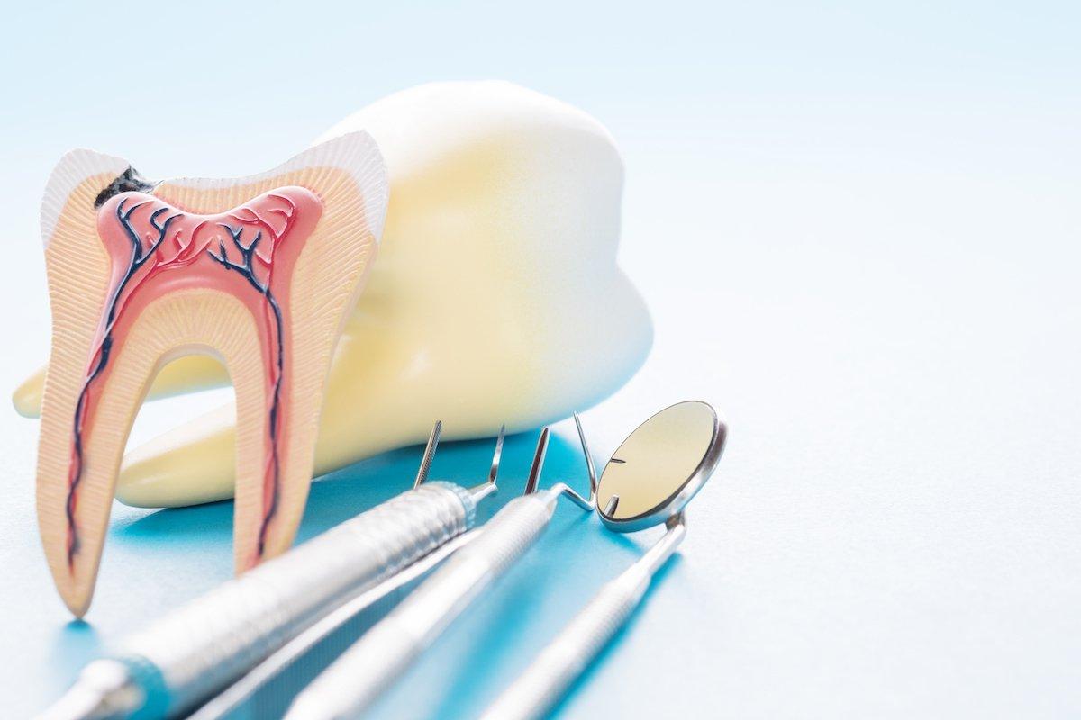 dental abscess leederville