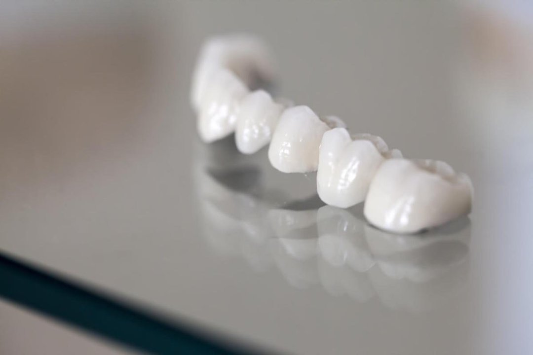 dental bridges leederville