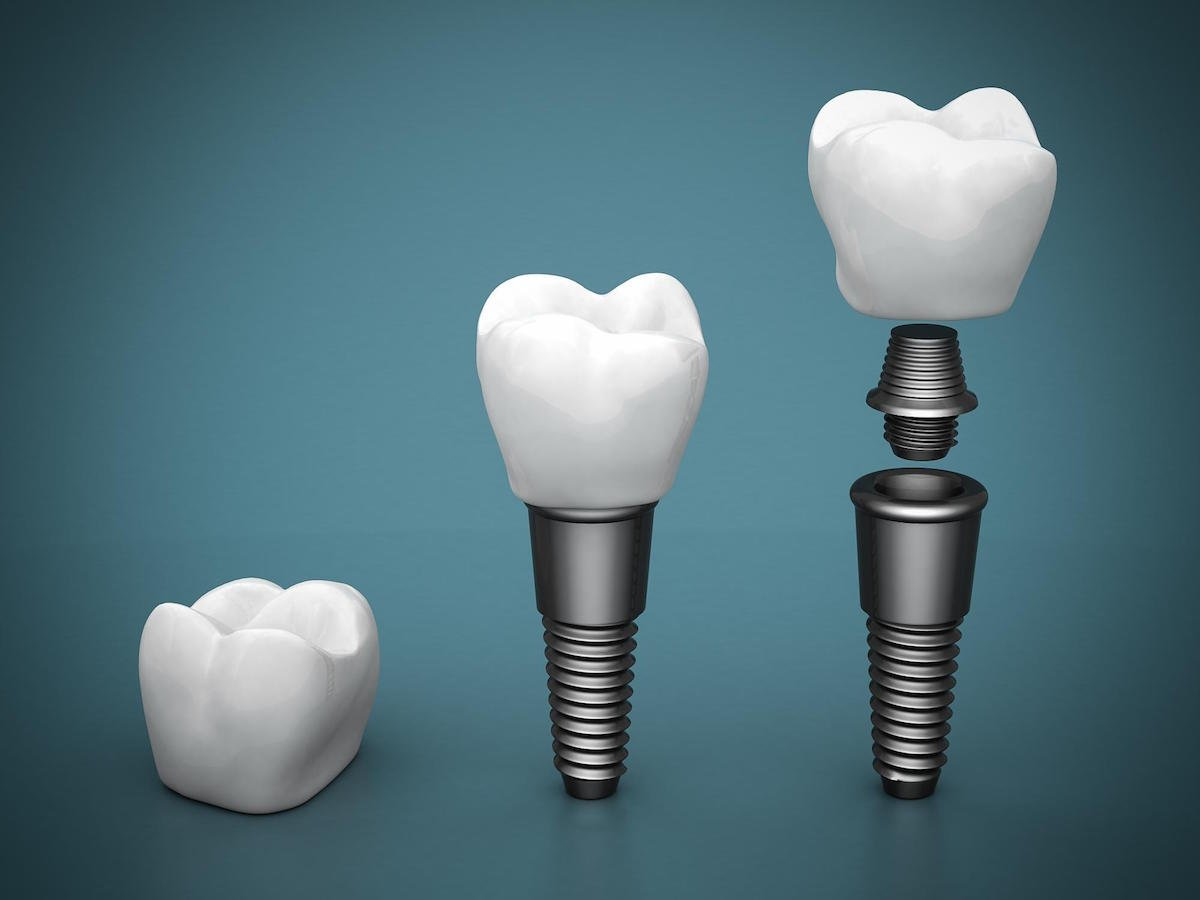 dental implants leederville