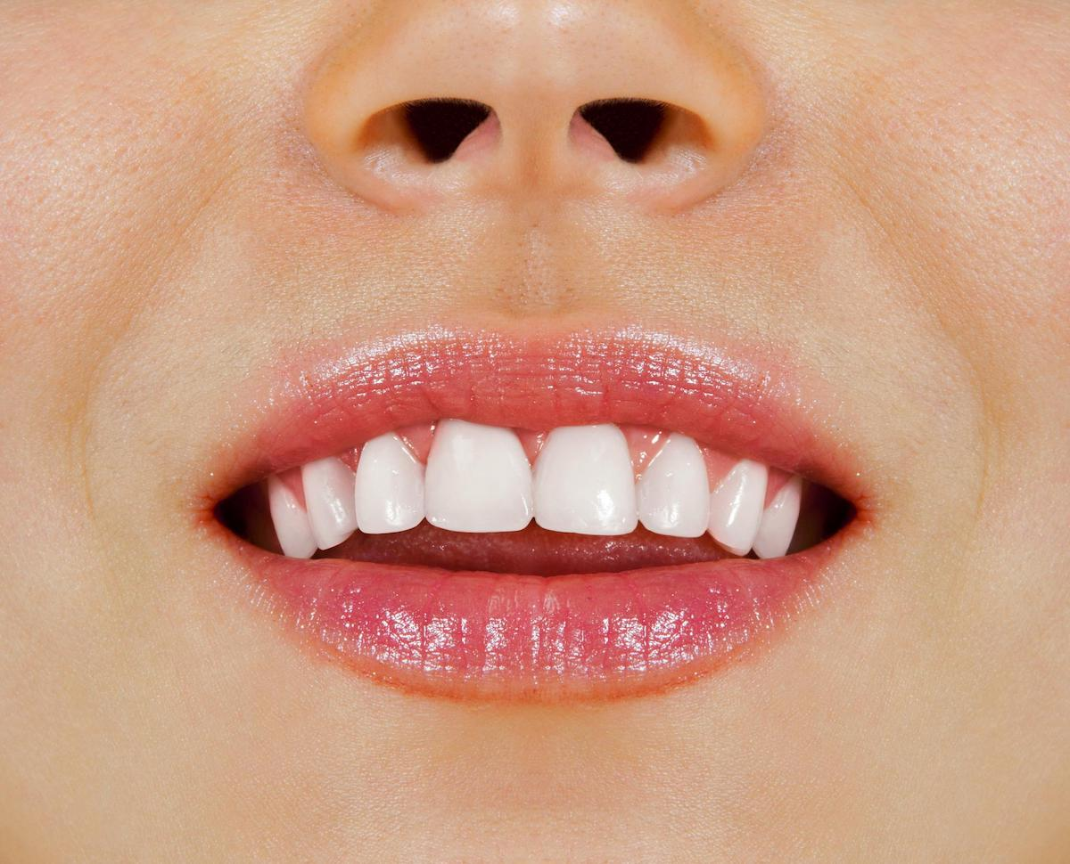 internal teeth bleaching after care leederville