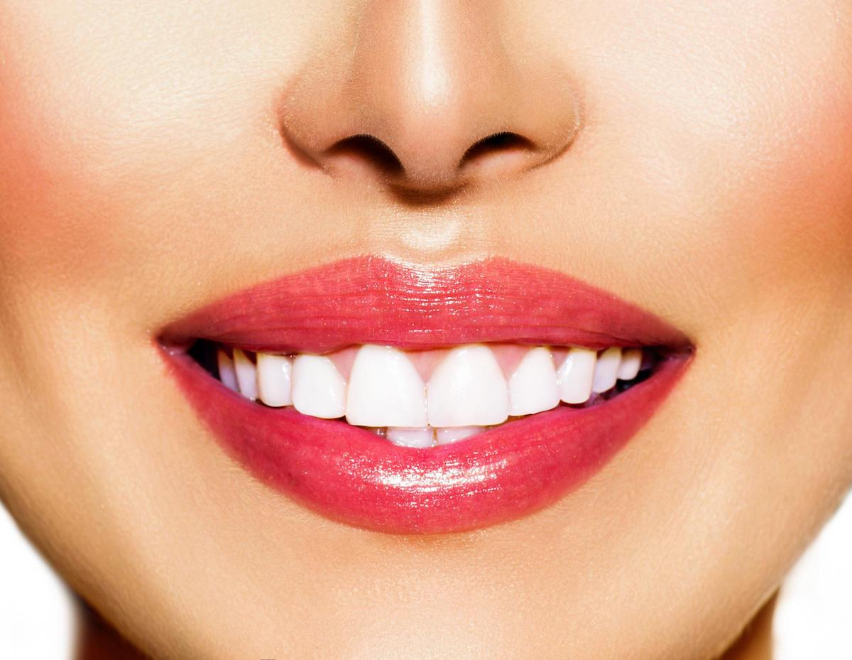 internal teeth bleaching leederville