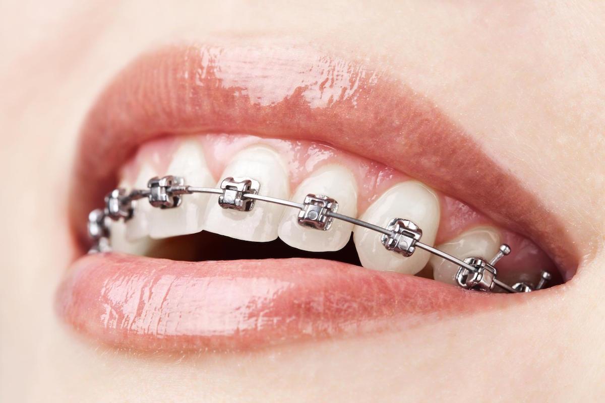 metal conventional braces braces leederville