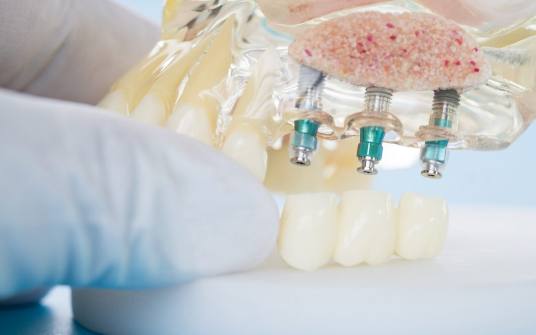 what can i expect after receiving a dental implant leederville