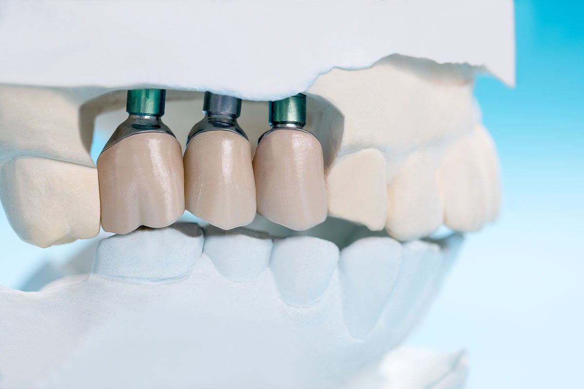 what is dental crown leederville