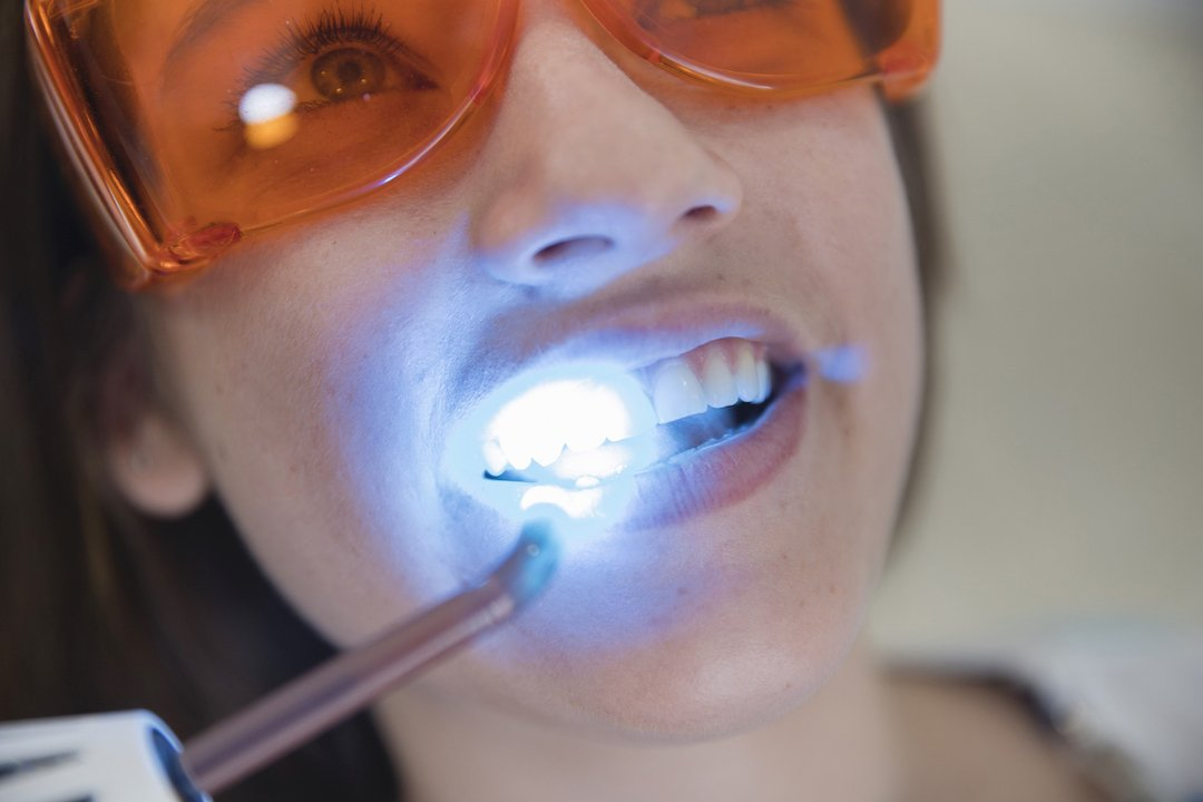 soft tissue laser treatment leederville