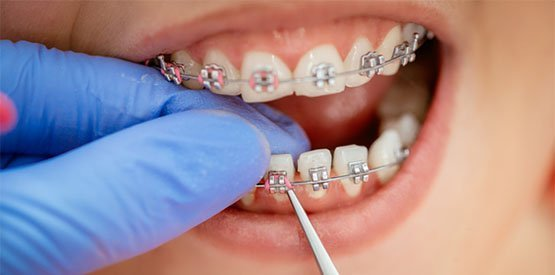 braces-care-leederville