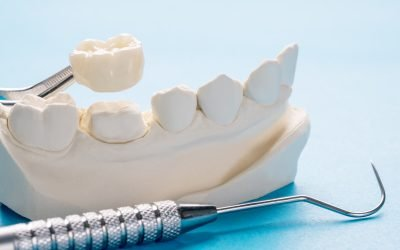 How Long Will Dental Crowns Last? Answers from Dentists on Vincent